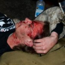 Protestor Injured by Police at Occupy Oakland