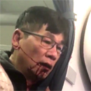 Photo: 'Just kill me': The moment bloodied United passenger mumbled about suicide after he was body-slammed by cops and dragged off overbooked flight to make room for airline STAFF