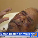 "Photo: Man, 92, Hit With Brick In Brutal July 4th Attack, told ""go back to your own country"""